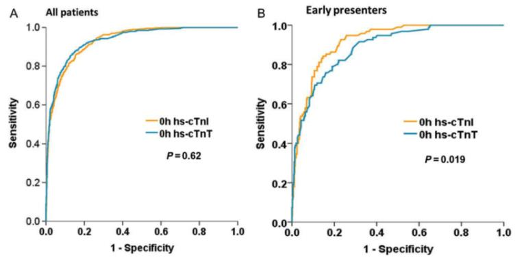 Diagnostic performance of high-sensitivity cardiac troponins I and T.